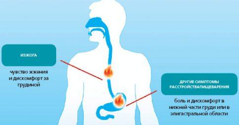 симптомы при повышенной кислотности в желудке