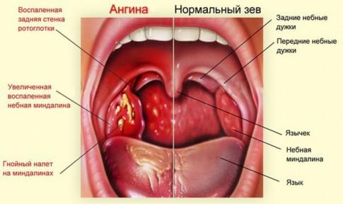 Ангина и нормальное горло