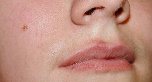 Бородавки. Лечение бородавок