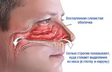 Что такое насморк - как он происходит в организме