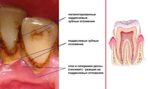 причины образования зубного каменя