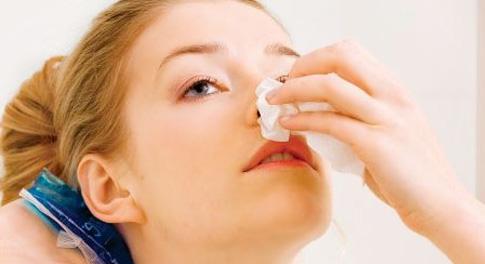 Носовое кровотечение - способы остановить кровь из носа
