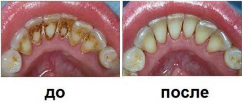Наглядно видно сколько может быть зубного камня на зубах